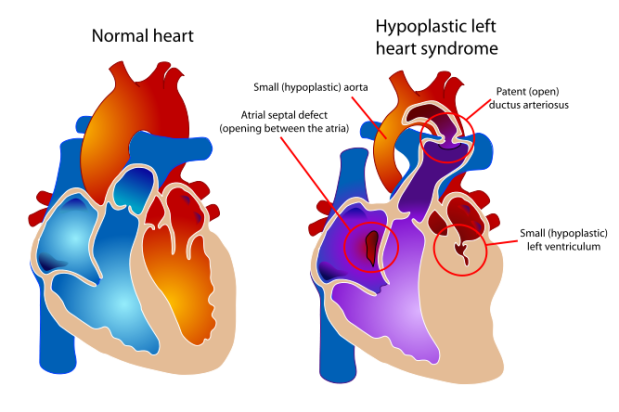 667px-Hypoplastic_left_heart_syndrome.svg
